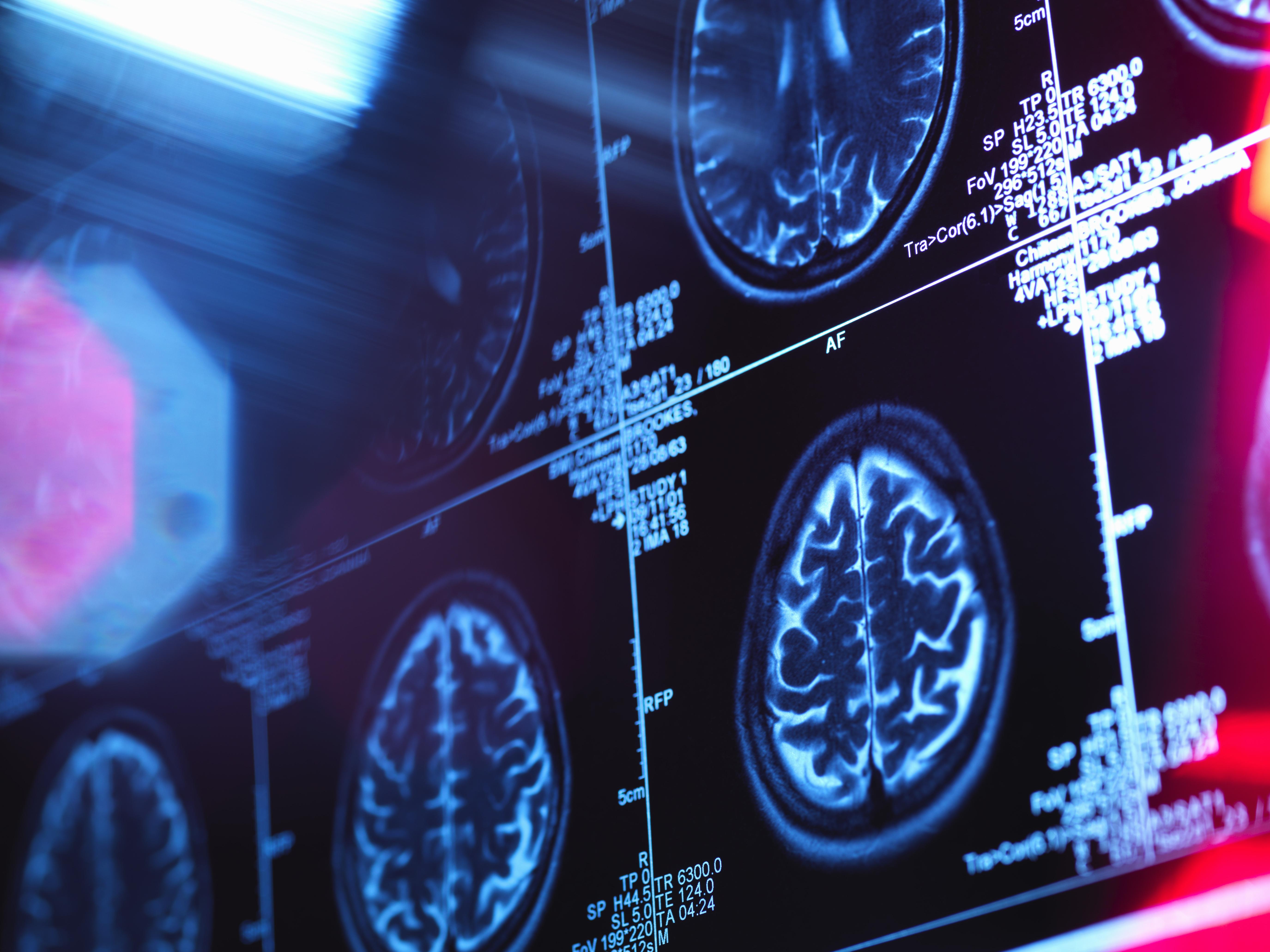 stroke scans
